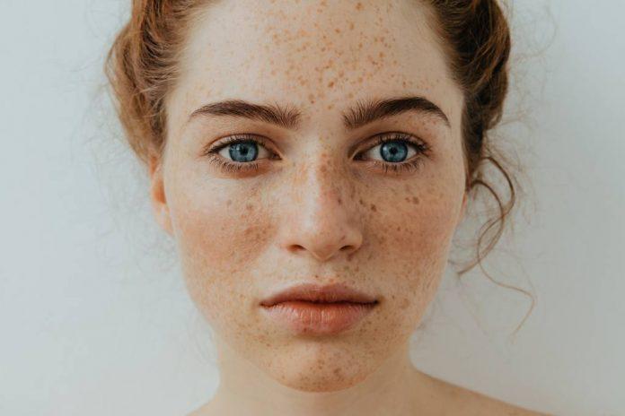 Freckles: Penyebab, Jenis, Cara Mengatasi