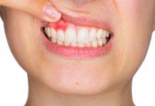 gejala-gingivitis-doktersehat