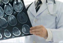 trauma-otak-doktersehat