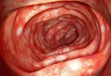 ulcerative-colitis-doktersehat