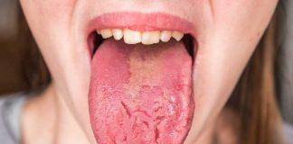 penyakit-lidah-doktersehat