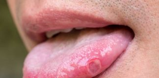 sariawan-di-lidah-doktersehat