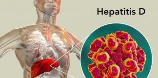gejala-hepatitis-d-doktersehat