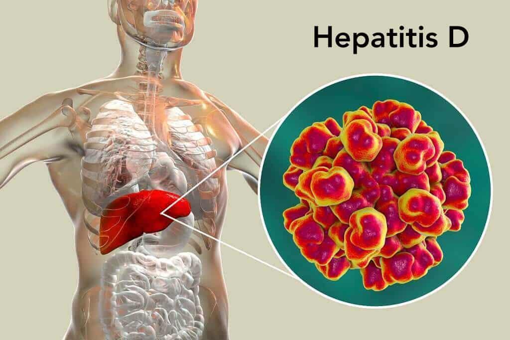 Hepatitis D: Penyebab, Cara Penularan, Gejala, Pengobatan, dll