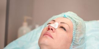 operasi-hidung-doktersehat