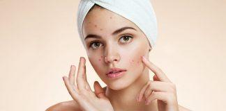 acne-rosacea-doktersehat