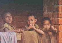 Perbedaan Marasmus dan Kwashiorkor-doktersehat