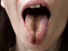lidah-hitam-doktersehat