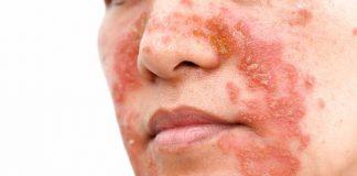 psoriasis di wajah-doktersehat