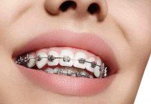 behel-gigi-doktersehat