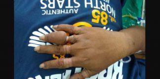 cincin-doktersehat