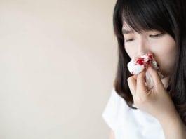 ingus-berdarah-dokter sehat