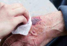 proses-pembekuan-darah-doktersehat