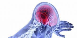 gejala-stroke-ringan-dan-cara-cepat-menanganinya-doktersehat