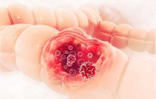 kanker-usus-besar-stadium-2-doktersehat