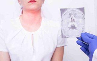 epiglotitis-doktersehat
