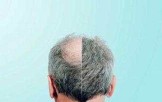 transplantasi-rambut-doktersehat