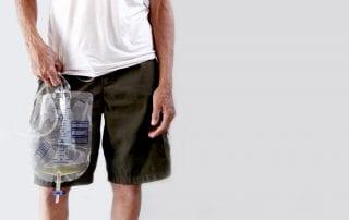 kateter-urine-doktersehat
