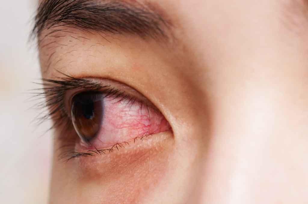 Iritasi Mata: 9 Penyebab dan Cara Mengobatinya