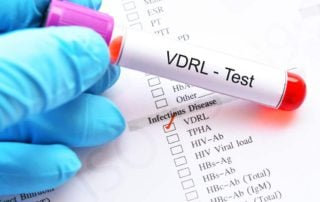 Tes VDRL: Manfaat, Prosedur, Hasil Tes, Komplikasi, dll