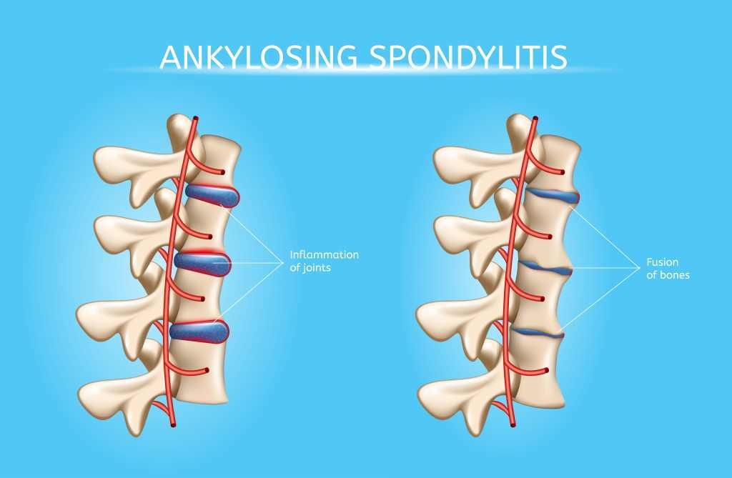 Ankylosing Spondylitis: Gejala, Penyebab, Diagnosis, dan Pengobatan