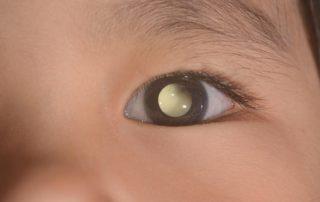 8 Ciri-Ciri Kanker Mata Anak (Retinoblastoma) yang Perlu Diwaspadai