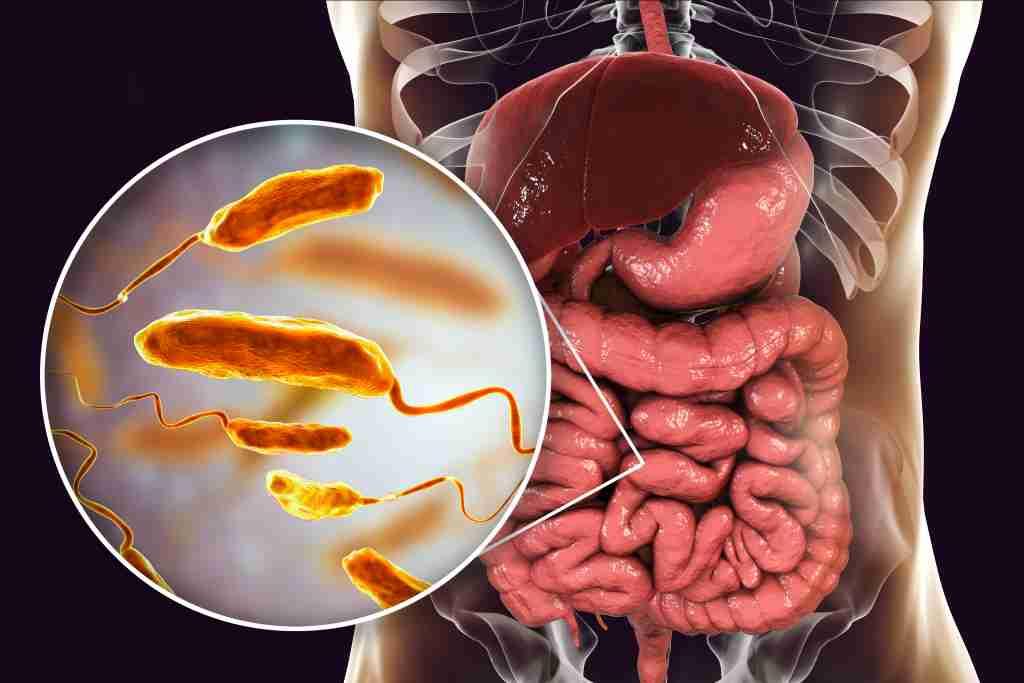 Kolera: Gejala, Penyebab, Diagnosis, dan Pengobatan
