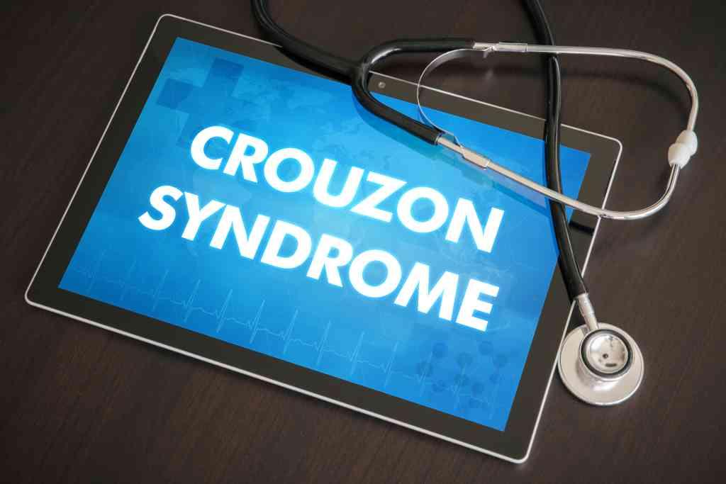 Crouzon Syndrome: Gejala, Penyebab, Diagnosis, dan Pengobatan