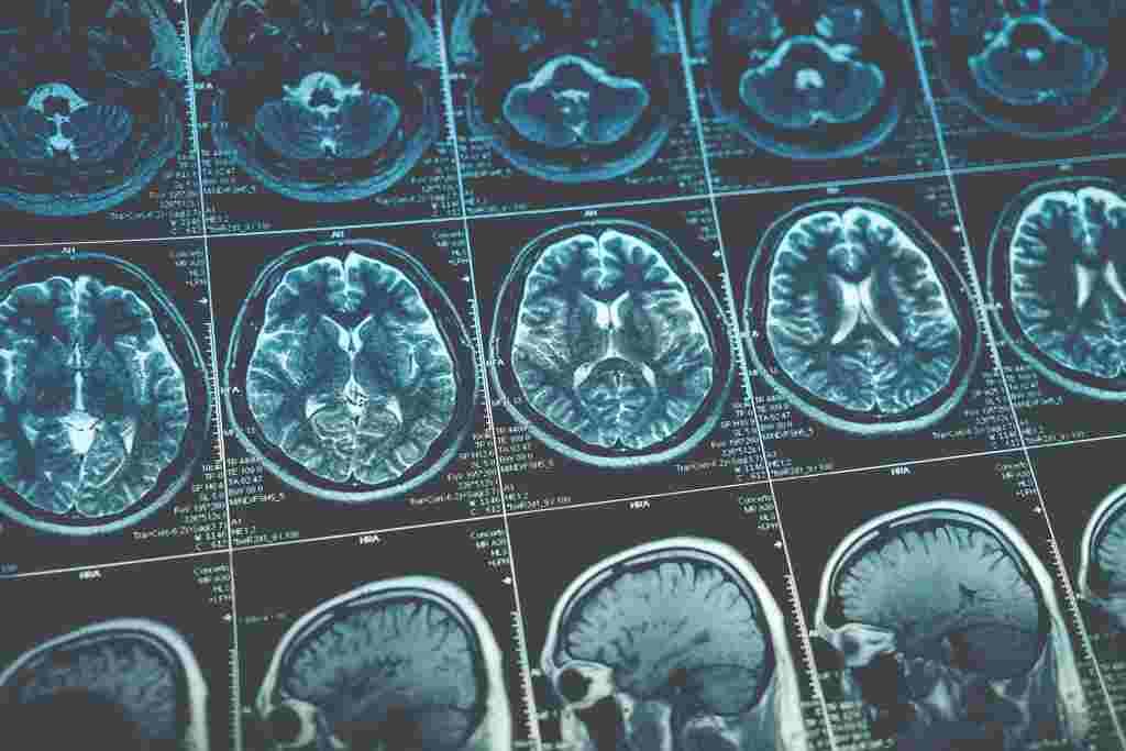 11 Jenis Tumor Otak yang Perlu Anda Ketahui