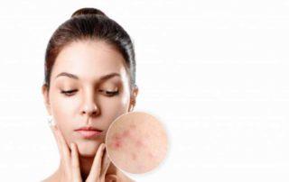 13 Skincare untuk Fungal AcnePaling Efektif