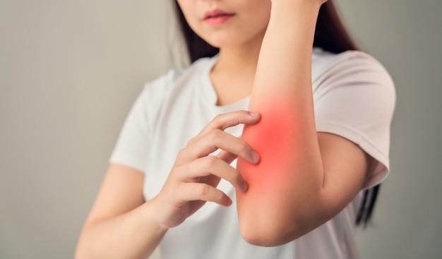 Mastocytosis: Gejala, Penyebab, Diagnosis, Pengobatan, dll