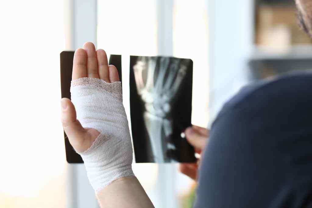 Patah Tangan: Gejala, Penyebab, Diagnosis, dan Pengobatan