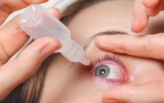 Cara Menghilangkan Urat Merah di Mata dengan Mudah dan Praktis